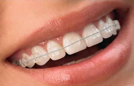 Tratamiento adultos cl nica de ortodoncia dres romero for W de porter ortodoncia